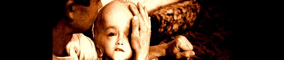 radiation sickness header